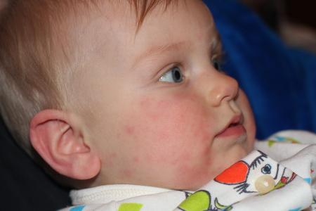 Акне младенцев