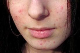 проблемная кожа на лице