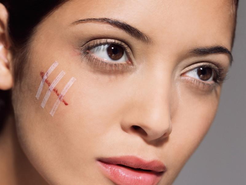 Повреждения кожи, осложненные воспалениями