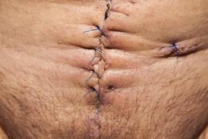 рубцы от операций контрактубекс