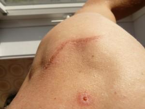 шрамы от прыщей и ран