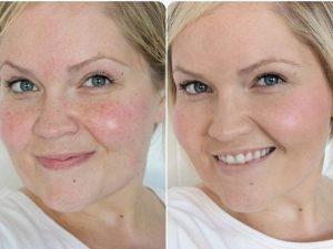 Чистка лица у косметолога: фото до и после