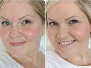 фото лица после чистки до и после